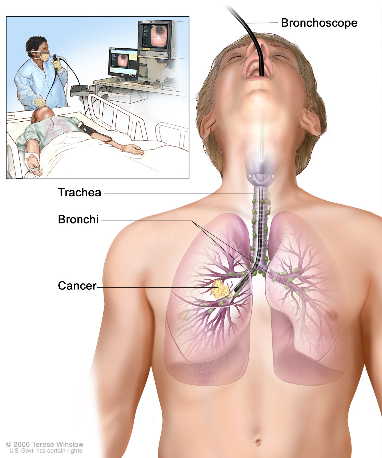 signs of mesothelioma lung cancer mesothelioma solicitors1 signs of mesothelioma lung cancer