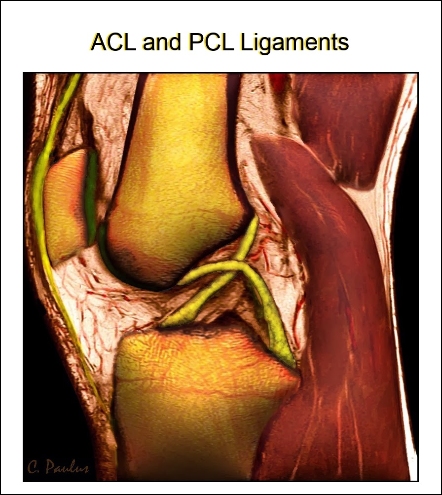 3-D Color HD Knee MRI, demonstrating the ACL and PCL Ligaments