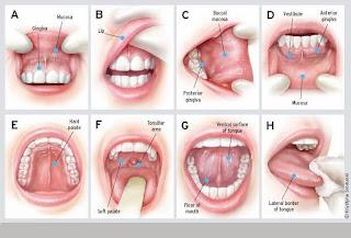Penyakit Kanker Mulut
