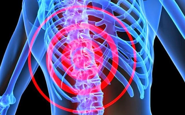 Χρόνιος πόνος στη μέση: Πού οφείλεται & τι πρέπει να κάνετε