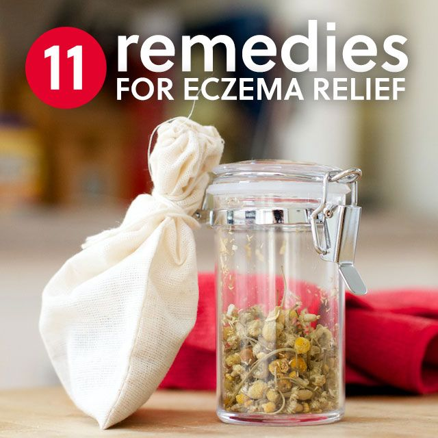 11 Healing Home Remedies for Eczema