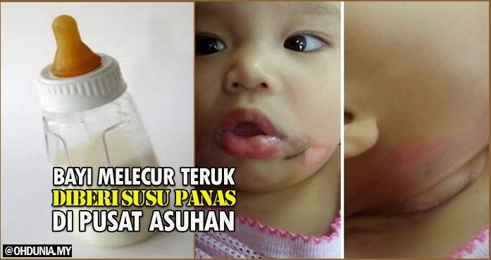 Bayi Melecur Teruk Diberi Susu Panas Di Pusat Asuhan Kanak-Kanak