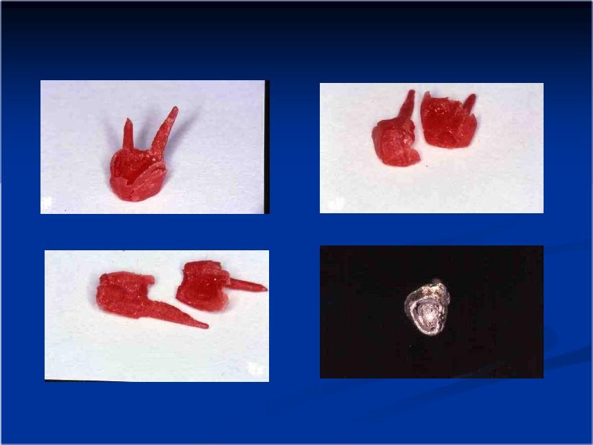 Pr tesis fija i abril 2012 for Estanques artificiales o prefabricados