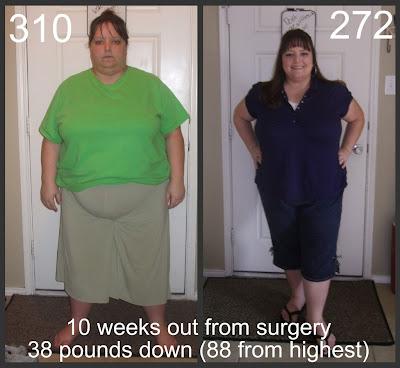 Dr dandade weight loss addition