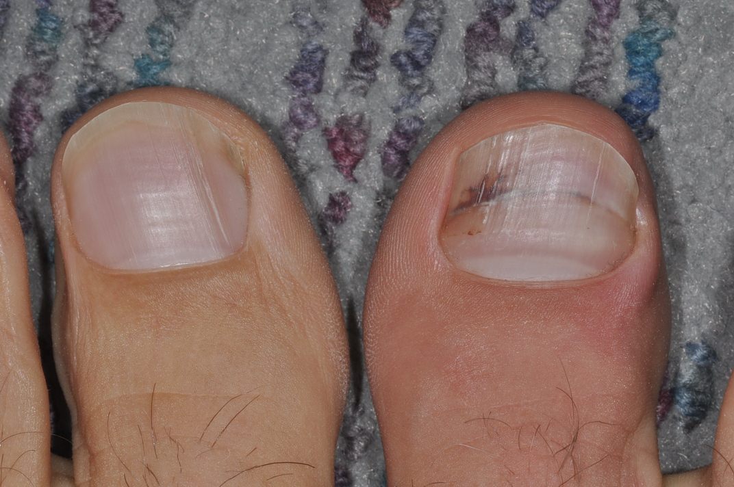 Foot and Ankle Problems By Dr. Richard Blake: Ingrown Toenail: Email ...