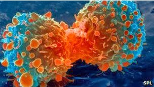 Permalink to New Way Boost Immunity to Overcome Cancer