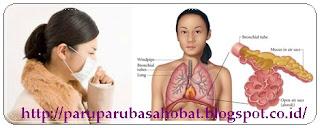 http://paruparubasahobat.blogspot.co.id/2015/09/apakah-paru-paru-basah-menular-atau.html