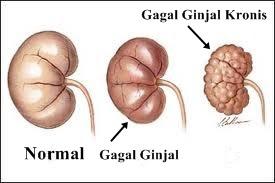 http://obatgagalginjal97.blogspot.com/