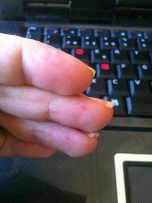 dedos picados diabetes