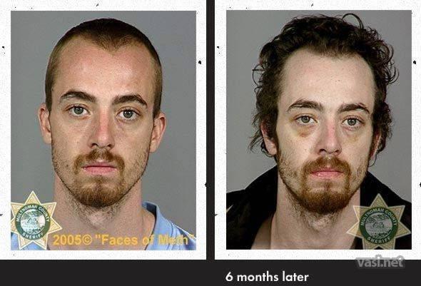 wajah ke 10 Wajah Para Pemakai Narkoba Sebelum Dan Sesudah Kecanduan