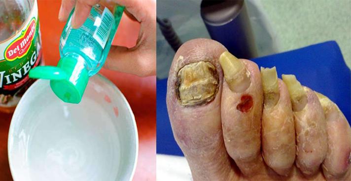El aceite monardy del hongo del pies