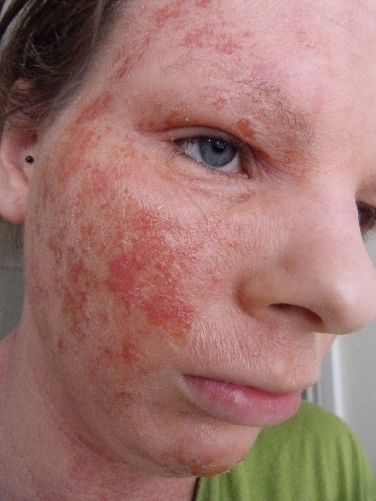 steroid induced rosacea flare up