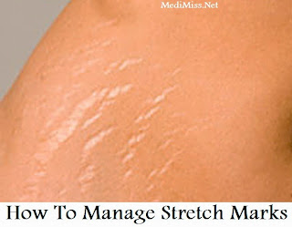 How To Manage Stretch Marks