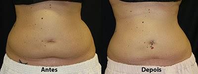 Resultados de criolipólise na barriga e flancos - Antes e depois