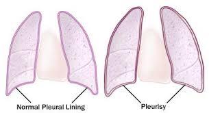radang selaput dada (Pleuritis)