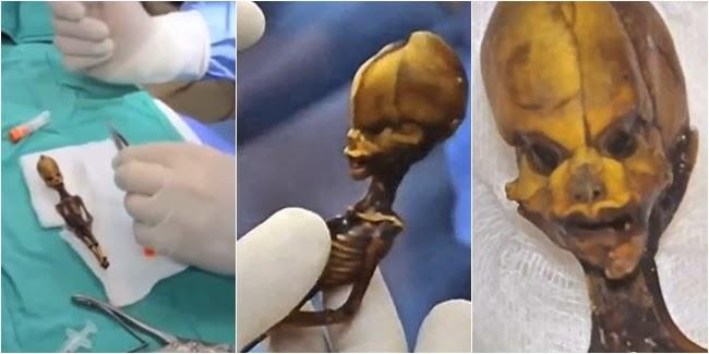 Manusia Setengah Alien Membuat Heboh Para Ilmuwan Dunia Apa Ada Alien Itu