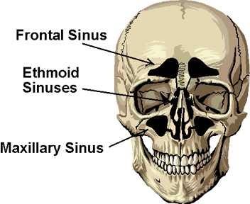 H flu sinus infection
