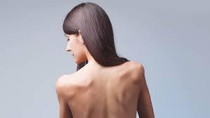 3 maiores causas e sintomas da Anorexia Nervosa