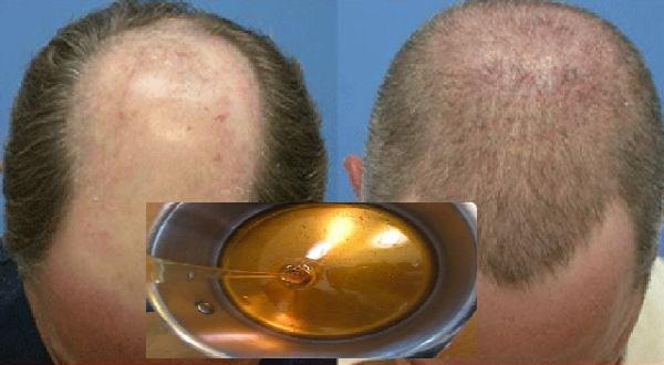 traitement naturel de la calvitie apr s deux jours les cheveux commencent repousser avec. Black Bedroom Furniture Sets. Home Design Ideas