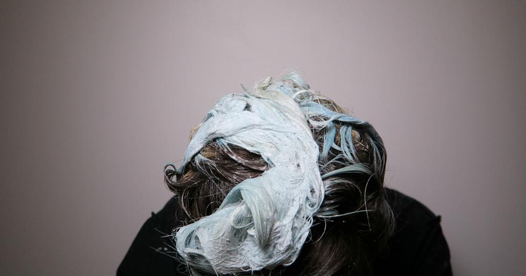 Le traitement de lalopécie chez les hommes par les moyens nationaux le forum