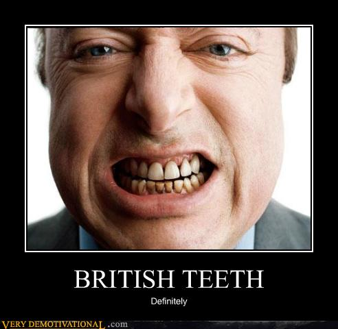american teeth vs british teeth The stereotype of yellow, slimy, crooked british smiles may not have teeth any more in a study comparing american and english dental health surveys, researchers found that american grins tended to have slightly fewer teeth, and those in lower socioeconomic positions had significantly worse oral.