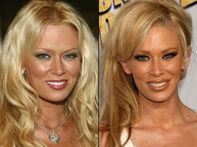 Jenna Jameson Antes y Despues
