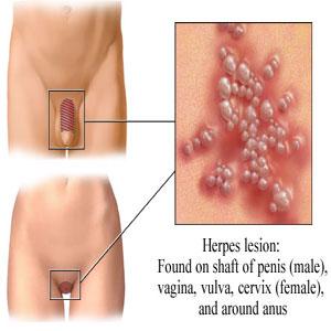 private sex videoer genital herpes