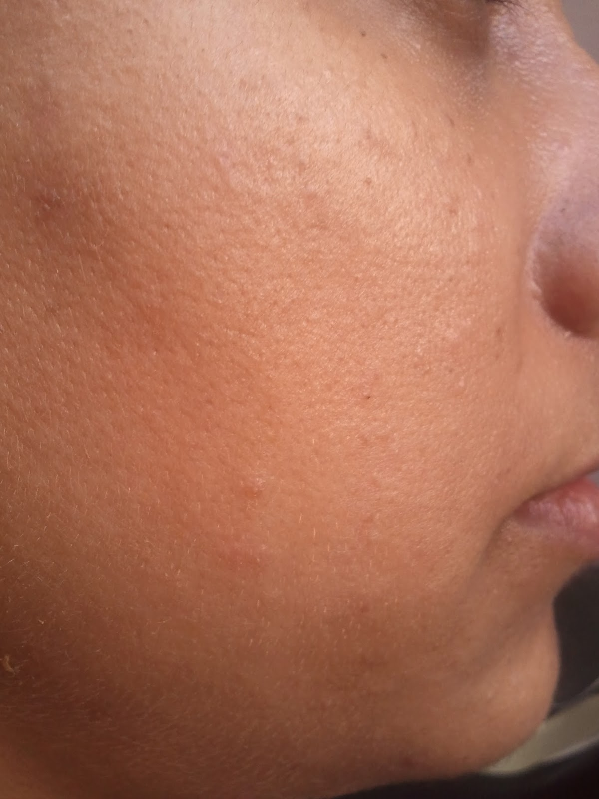 Prompt reply cure for facial warts have