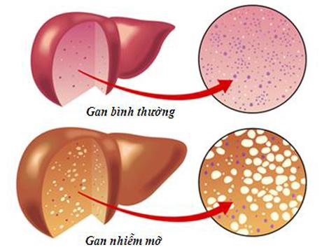 Bạn Hiểu Thế Nào Về Bệnh Gan Nhiễm Mỡ Độ 1 ?