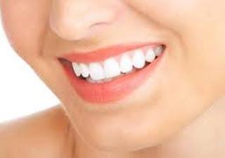 6 Tips Supaya Gigi Putih dan Tidak Berlubang