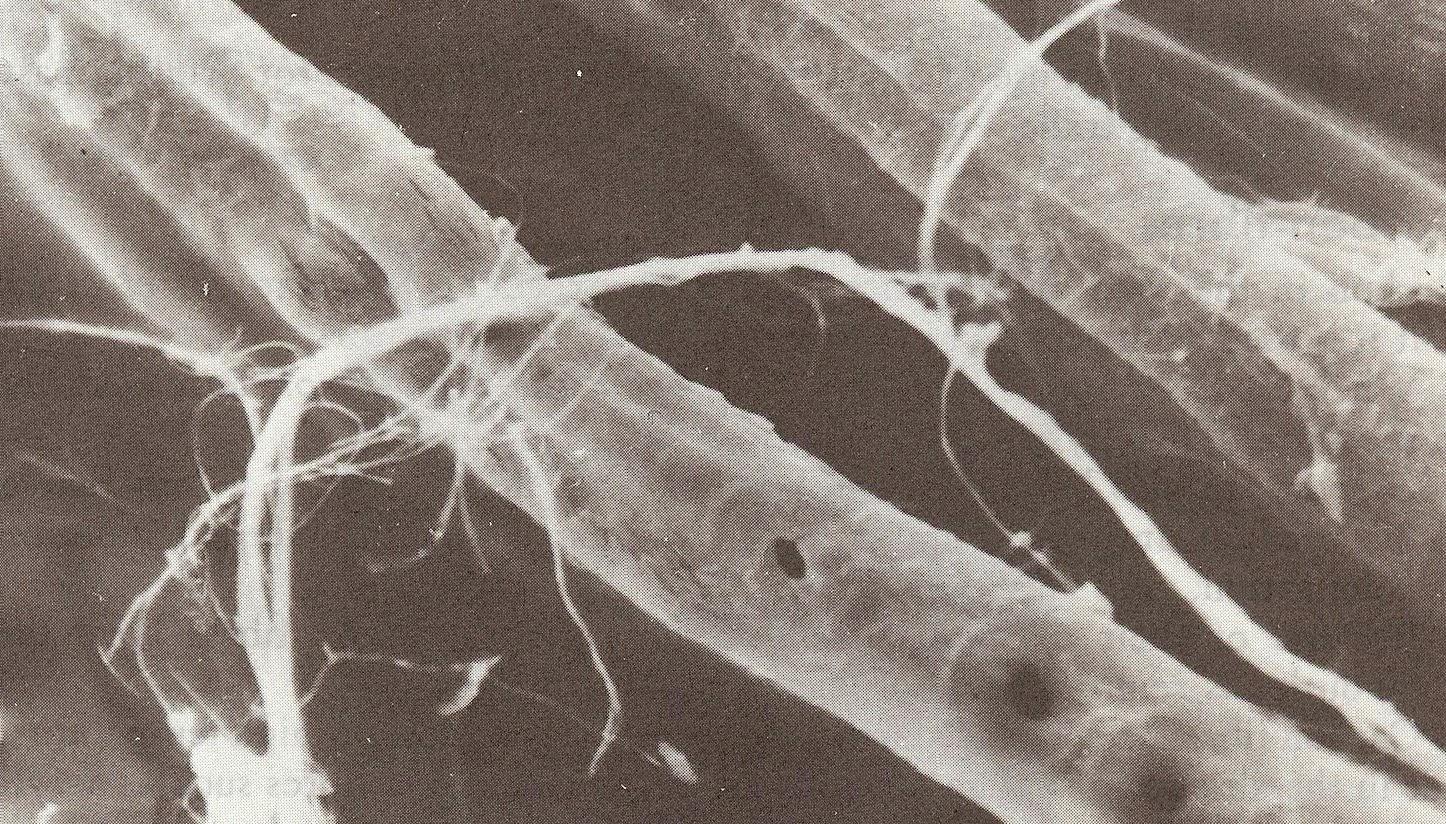 Asbestos Fibers Under Microscope : Art quill studio man made synthetic fibers mineral
