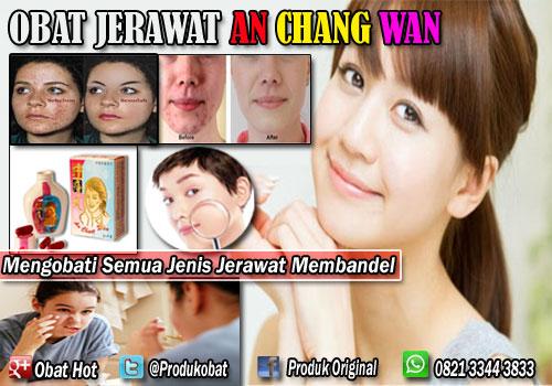 Obat Jerawat Anchang Wan Solusi Untuk Mengobati Semua Jenis JerawatYang Sulit Di Hilangkan