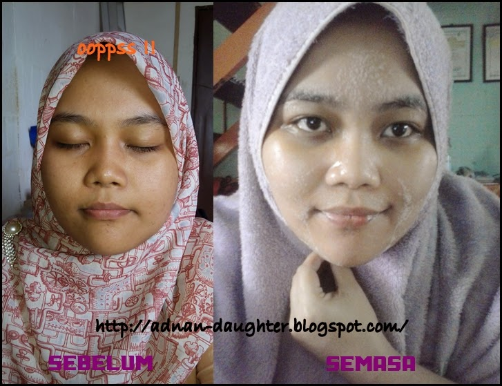 testimoni my beauty herbs