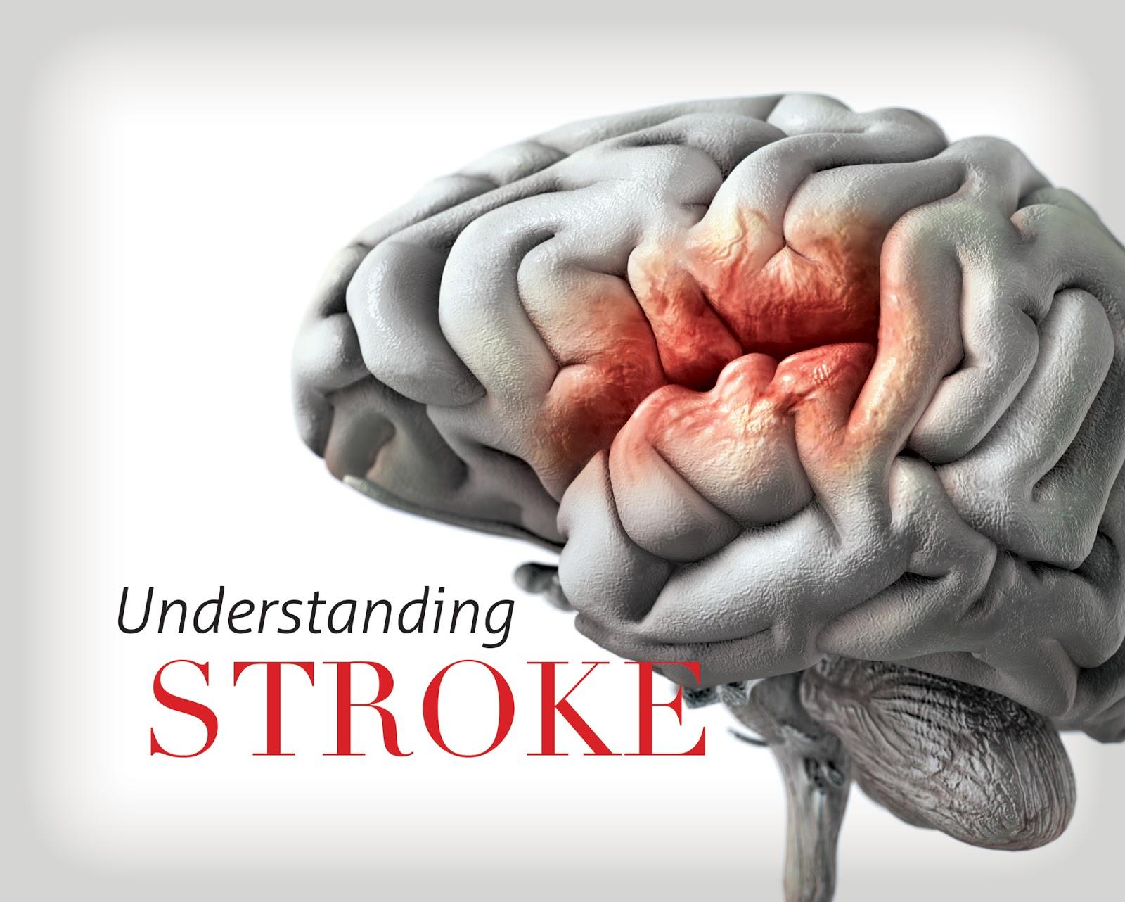 Traumagency: BRAINSTEM Stroke Syndromes