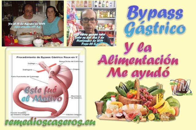 Alimentación después del Bypass Gástrico