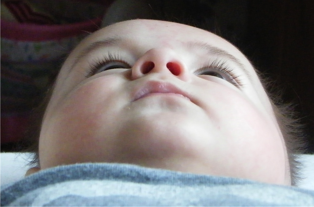 Plagiocephaly Treatment In The Uk Evren S Before And