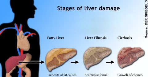 Dangers Of Cirrhosis And Levitra