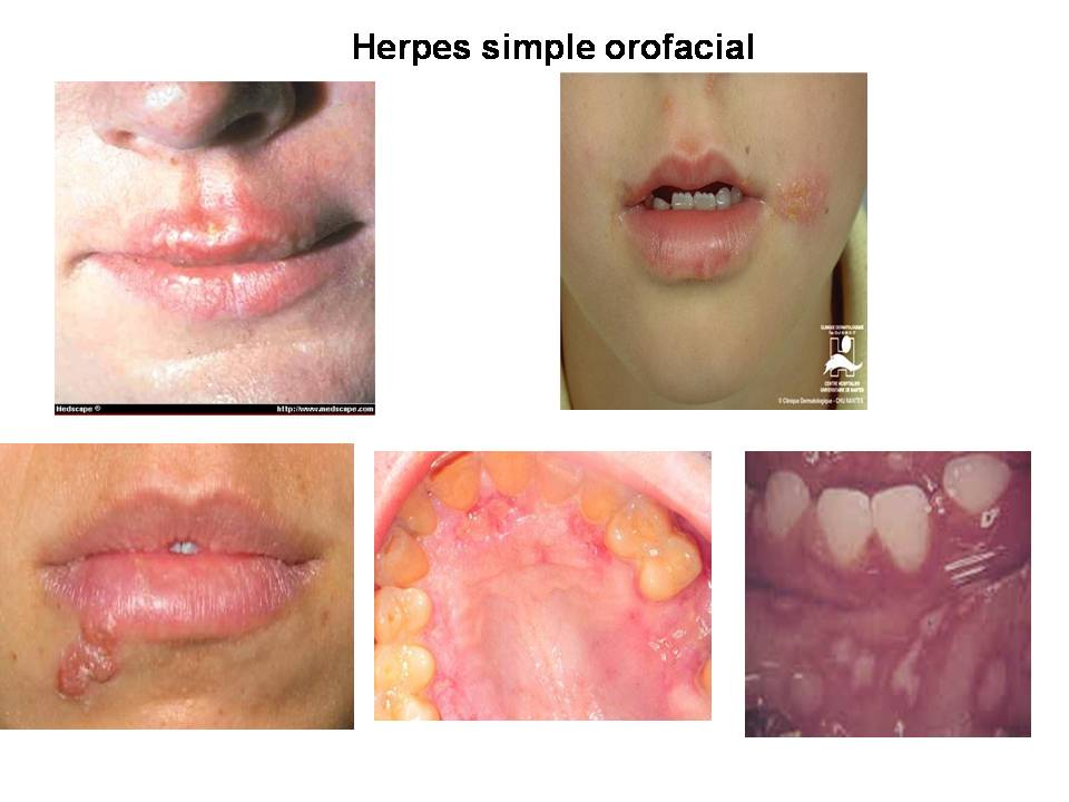 Male circumcision for the prevention of HSV-2 and HPV infections and syphilis