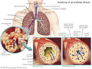 Ramuan Obat Herbal Tradisional Sakit Asma