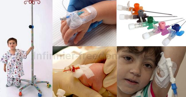 Les opérations de la varicosité des membres inférieurs
