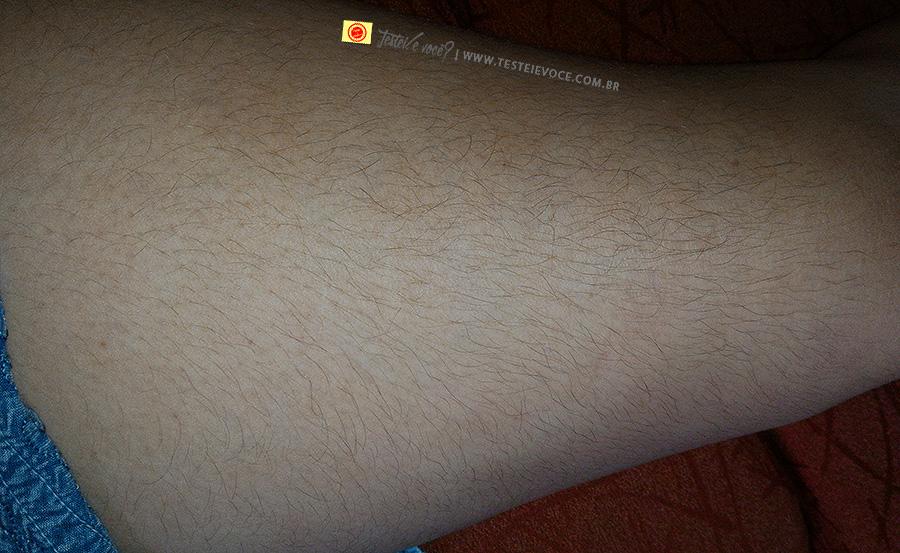 D'pil Brasil Fotodepilação - Término do Tratamento