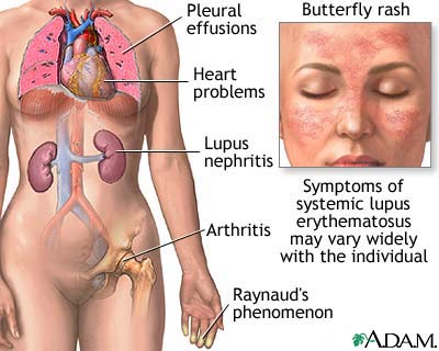 systemic lupus erythematosus symptoms pdf