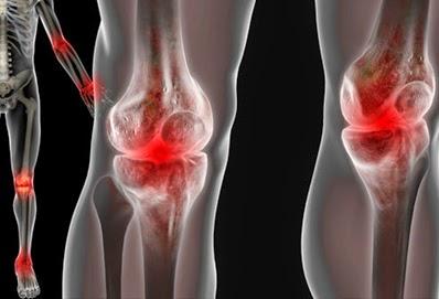 pengapuran sendi lutut osteoarthritis, pengobatan pengapuran sendi lutut