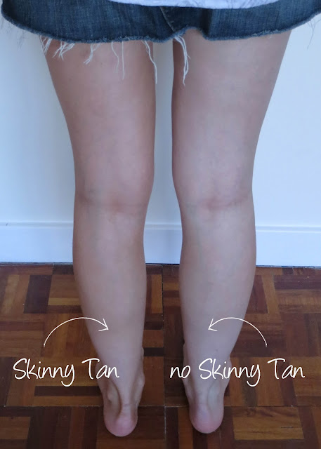 Skinny Tan 7 Day Tanner cellulite before/after photo