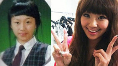 Hyorin Sistar Before After