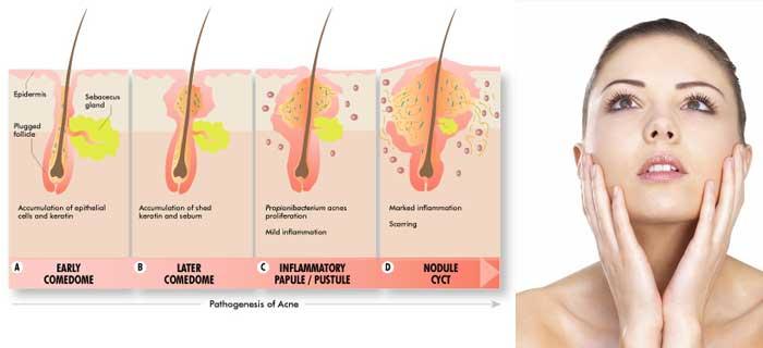 How Do You Get Acne