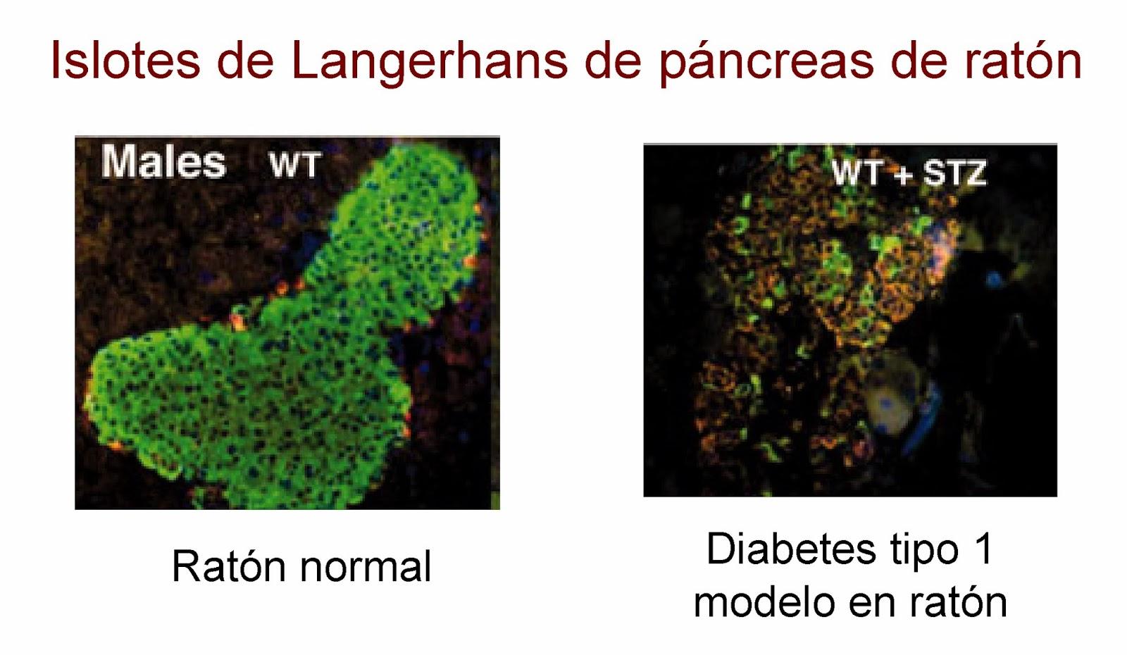 Islote de Langerhans de un ratón con diabetes tipo 1