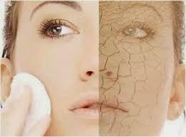 perawatan kulit kering natural