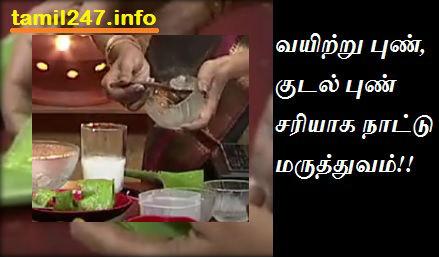 vayitru pun, kudal pun sariyaaga paarambariya nattu maruthuvam (sotru katralai)