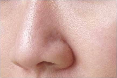 How to Prevent Enlarged Pores On Face
